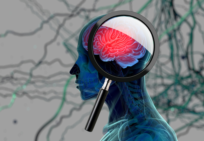Alzheimers and type3 diabetes